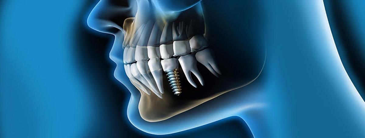 La investigación en Implantología Oral  representa un gran avance para la especialidad en América Latina