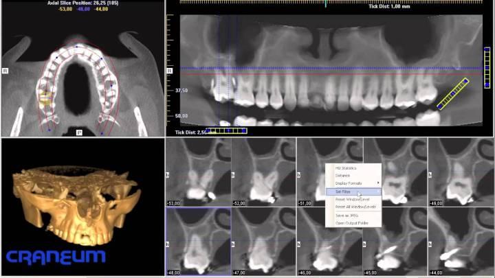 imagen implantologia
