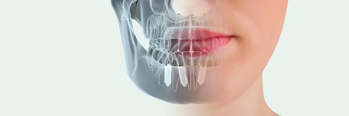 La importancia del estudio de la Implantología Oral
