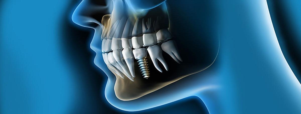 Las mejores prácticas en Implantología Oral se dan en países con mayor desarrollo en investigación