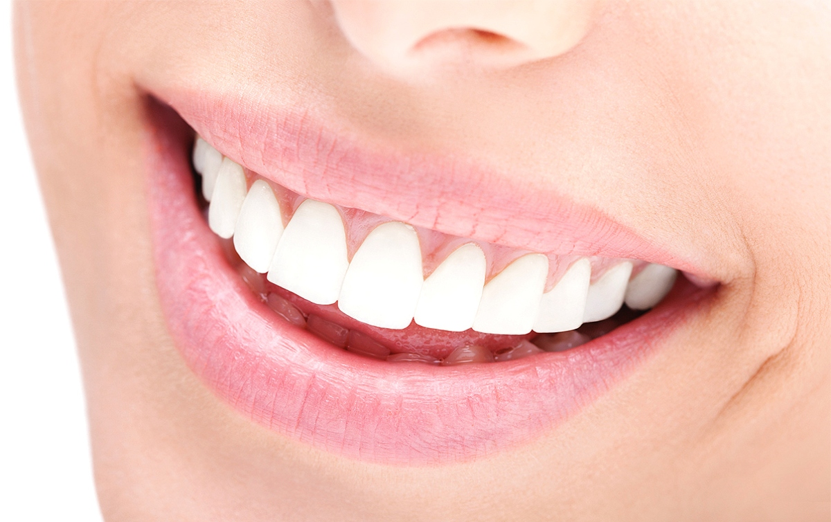 Blanqueamiento Dental: Un tratamiento Tractor