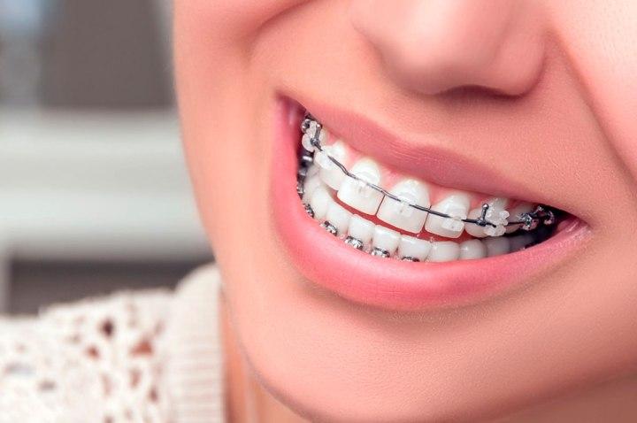 guia-tratamiento-ortodoncia