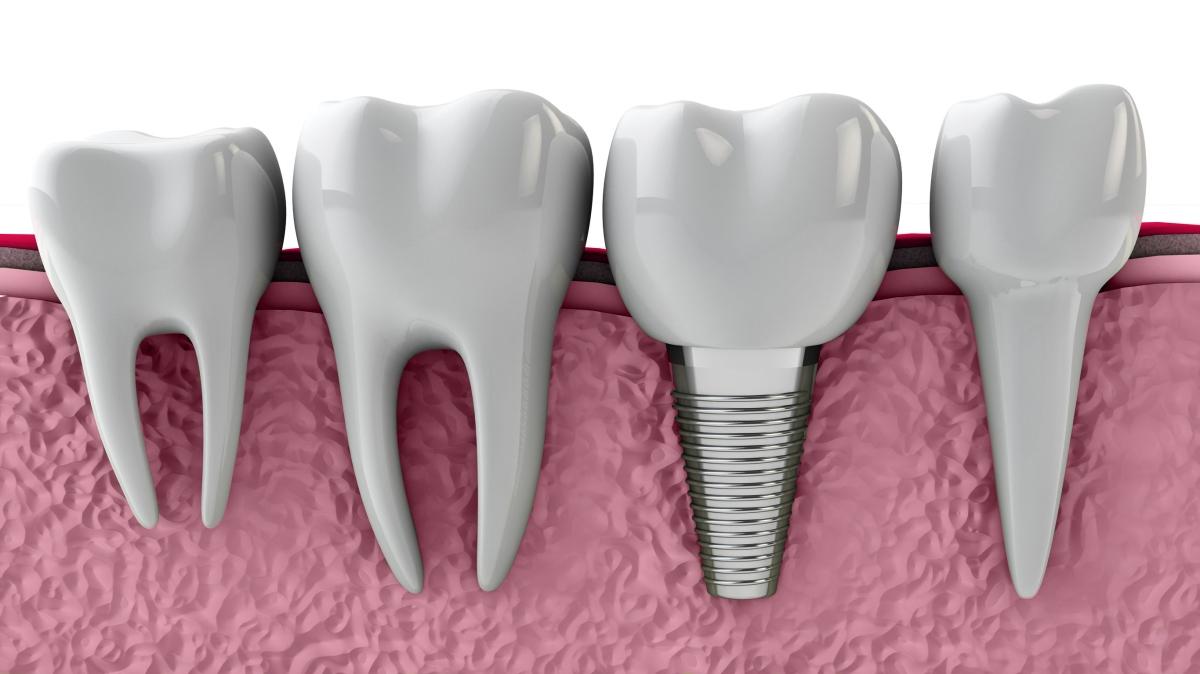 Regeneración del hueso con biomateriales para la colocación de implantes dentales