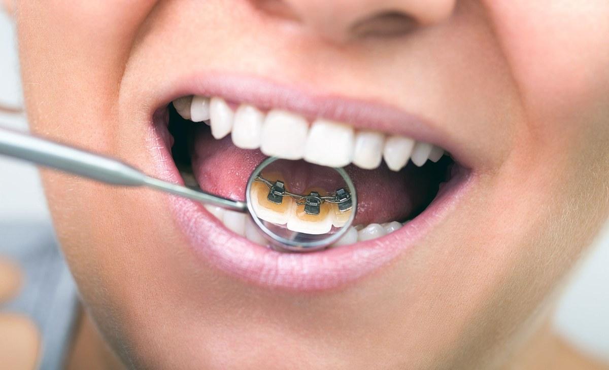 Beneficios de tener una dentadura correctamente alineada