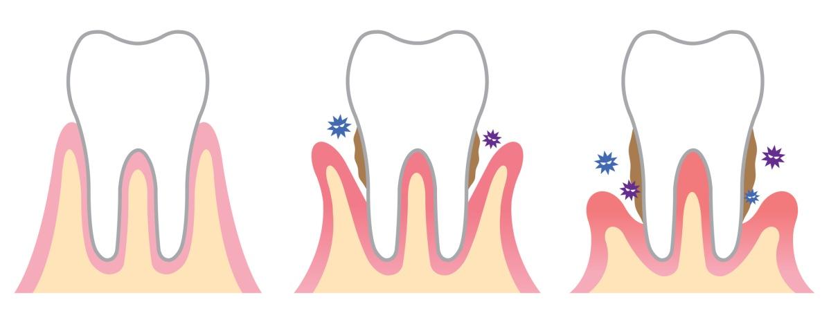 Gingivitis y Periodontitis. Enemigos a combatir con buena higiene