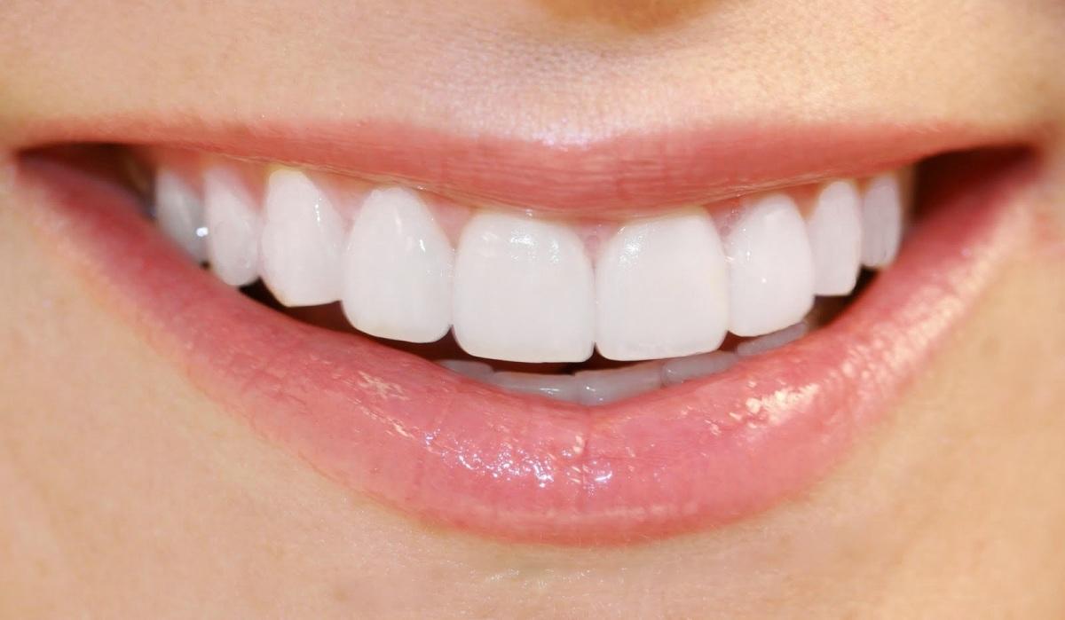 Los implantes y el blanqueamiento de los dientes en busca de una sonrisa ideal